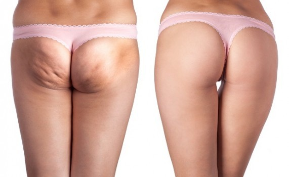 rimedi-cellulite-naturali-571x350